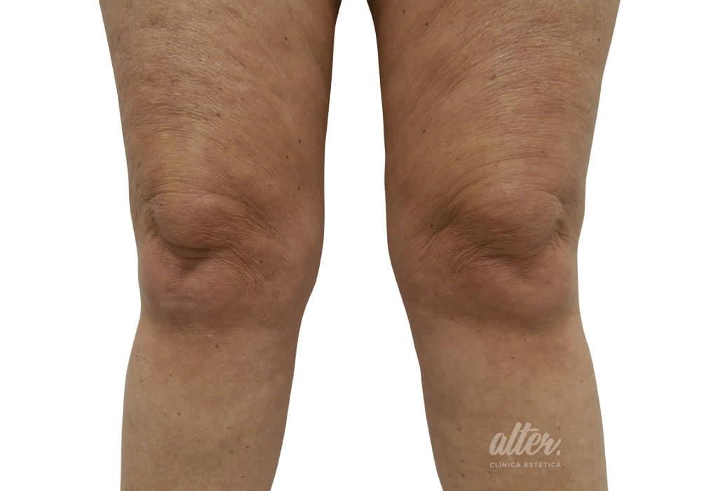 1024-700-hifu-rodillas-antes