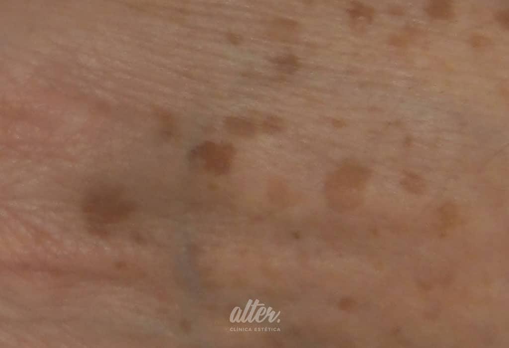 ANTES-1024-700-manos-manchas-IPL