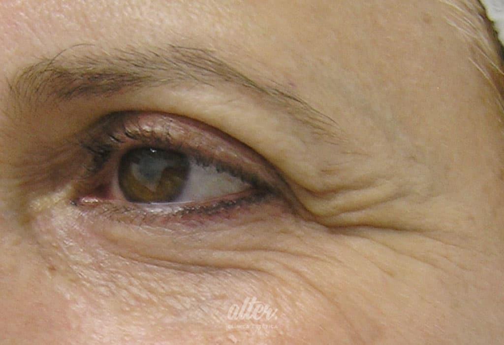 Antes-botox-ojos